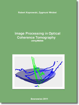 Image Processing In Optical Coherence Tomography by Robert Koprowski, Zygmunt Wrobel
